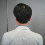 京都府京都市 60代 男性 N様