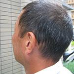 京都府京都市 40代 男性 O様